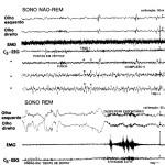 Traçado eletroencefalográfico do sono